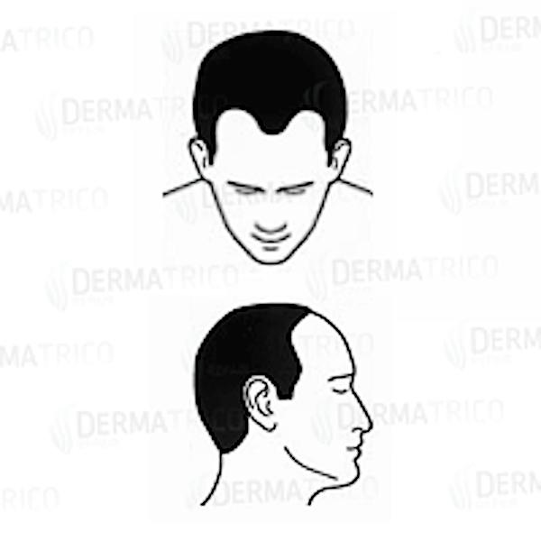 Diradamento frontale hairline